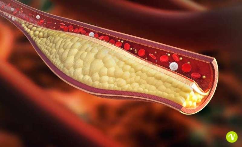 dago salvavita - il dott  massimo finzi sul colesterolo