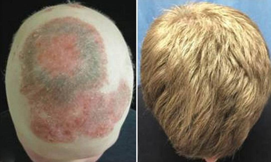 Eczema da bambini su un fondo